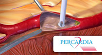 Percardia