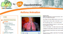Glaxo Smith Kline